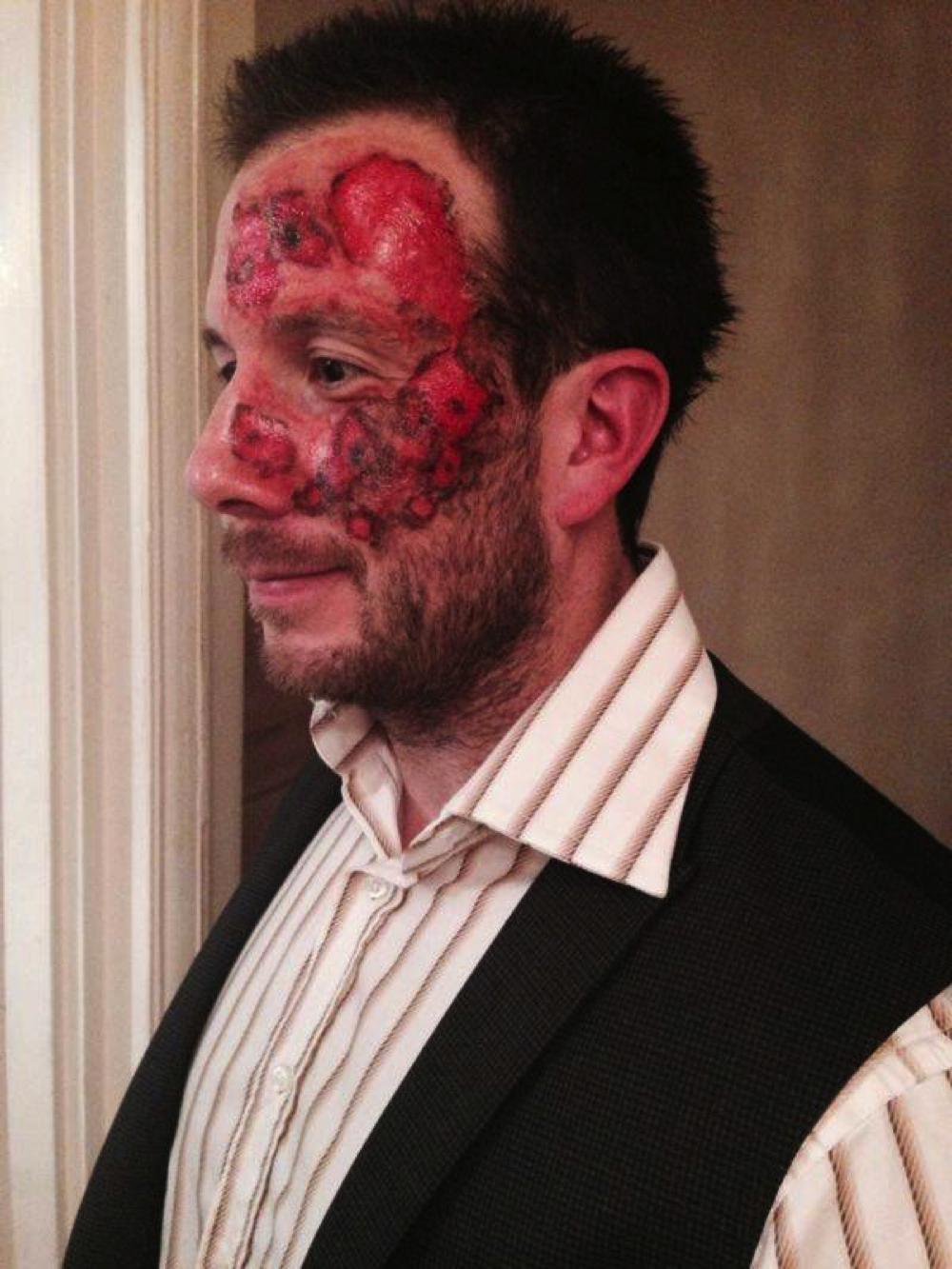 Tinsley Trauma Series Tattoo Burned Alive